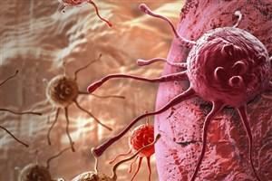 Researchers Identify Key Factor in Luminal Breast Cancer Development