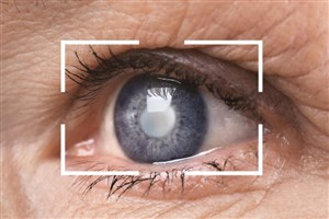 قطره چشم نانو تولید شد